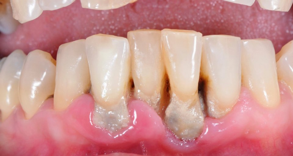 Signs That Your Gums Are Receding