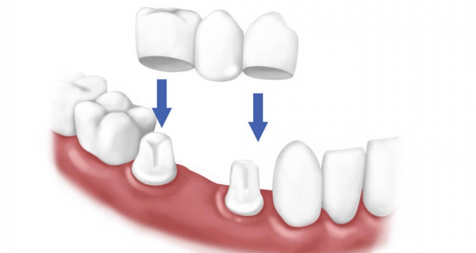 What Exactly Is A Dental Bridge?