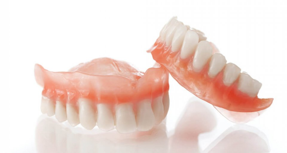 What Are the Benefits of Dental Implants?
