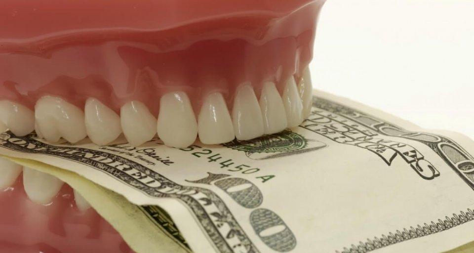 Dentures Explained Fully