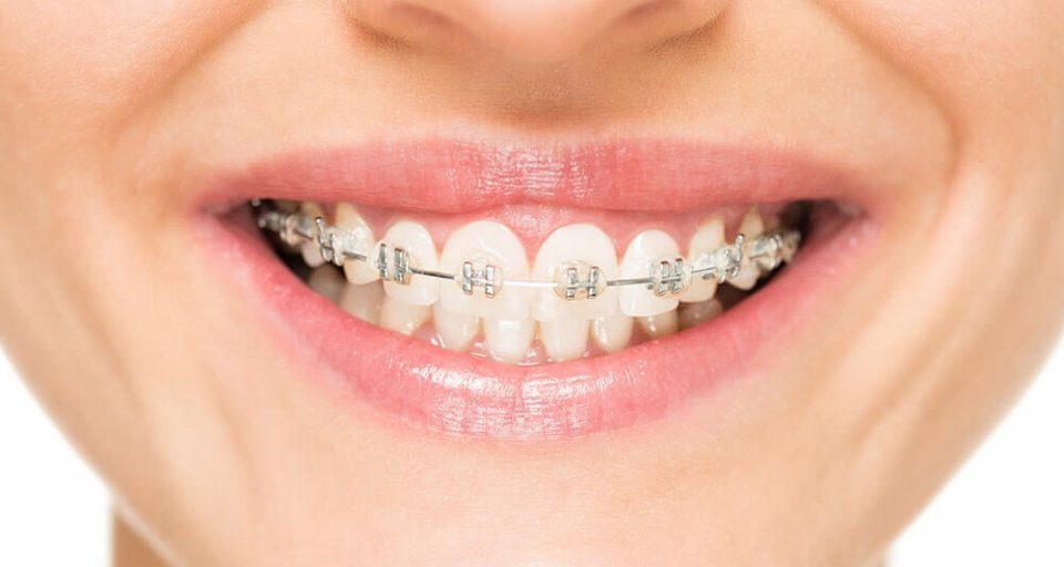 Why Are Braces So Expensive And How Can I Afford Them?