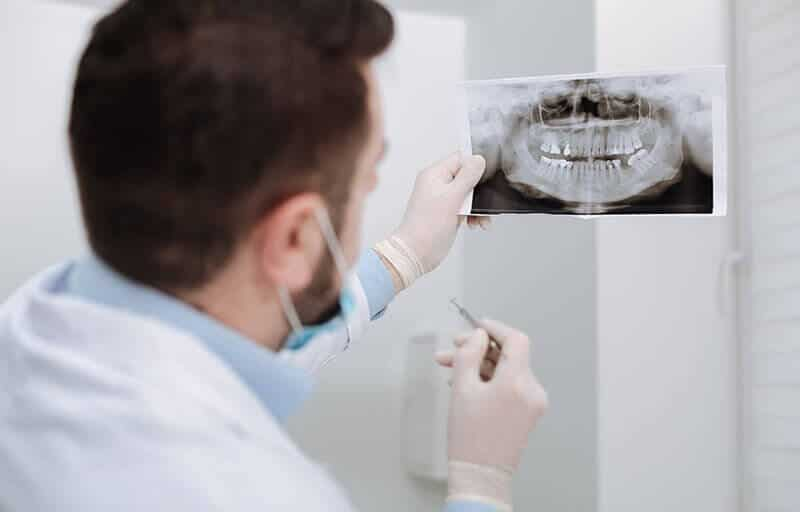 Why You Need Routine Screenings for Oral Cancer