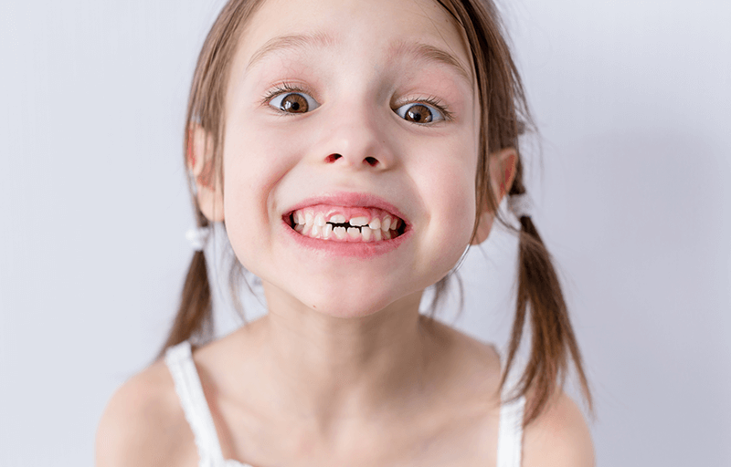 Root Canal Treatment for Kids